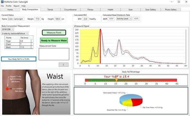 BodyMetrix Professional Ultrasound with Flight Case